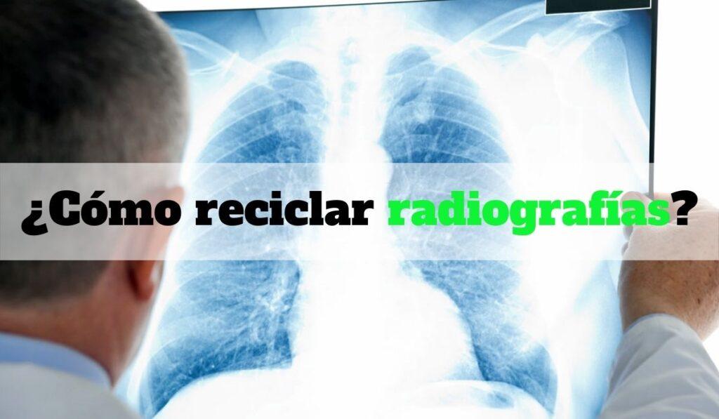 ¿Cómo reciclar radiografías?